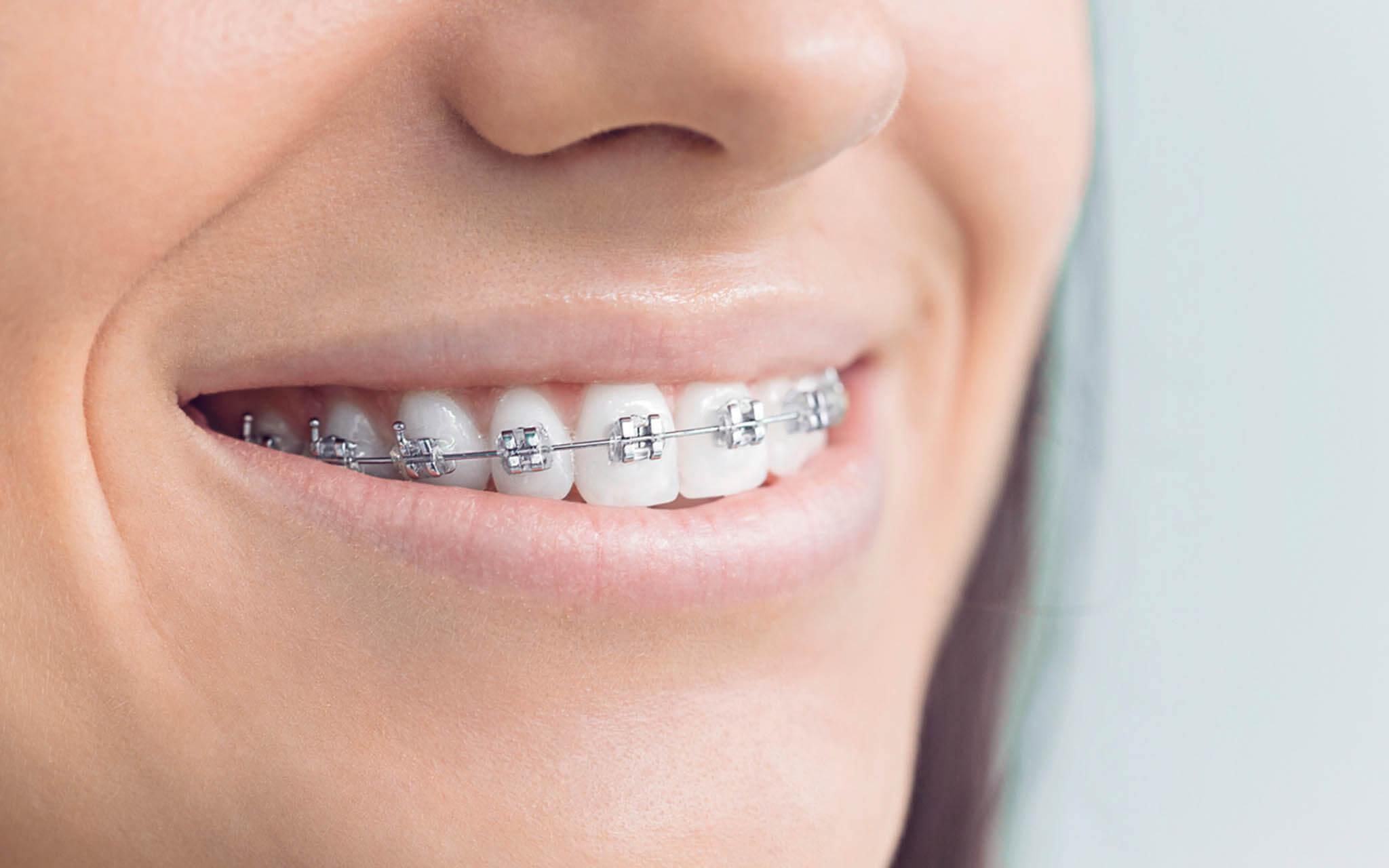 фото металлических брекетов на зубах содержания
