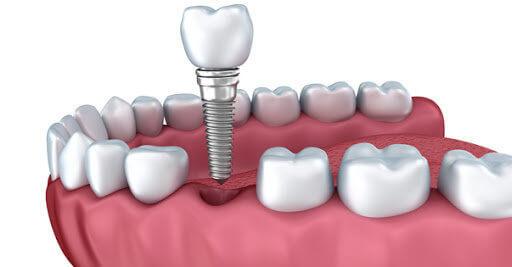 Причины болезненных ощущений после имплантации зубов